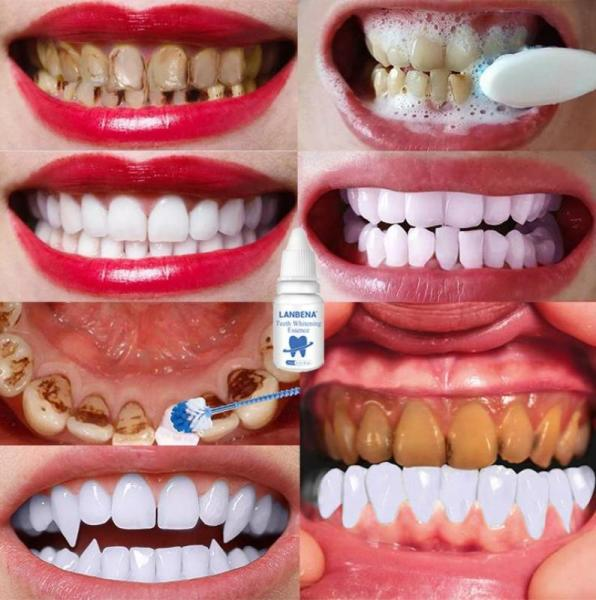 LANBENA TRẮNG RĂNG Teeth Clean Spot Cleaning LÀM SẠCH RĂNG Teeth Whitening TRẮNG RĂNG Teeth White Intensive Whitening Treatment cao cấp