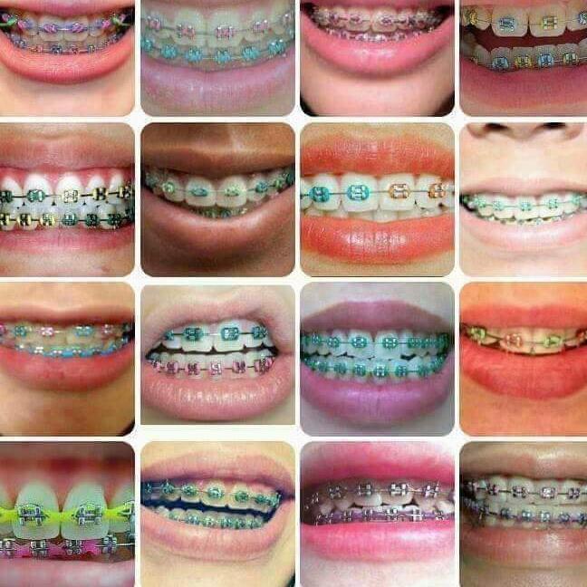 retainer like braces fashion bibolyn