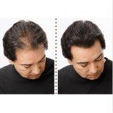Hair Building Fibers Hair Loss Solutions Concealer 27.5g Black - intl   Lazada PH