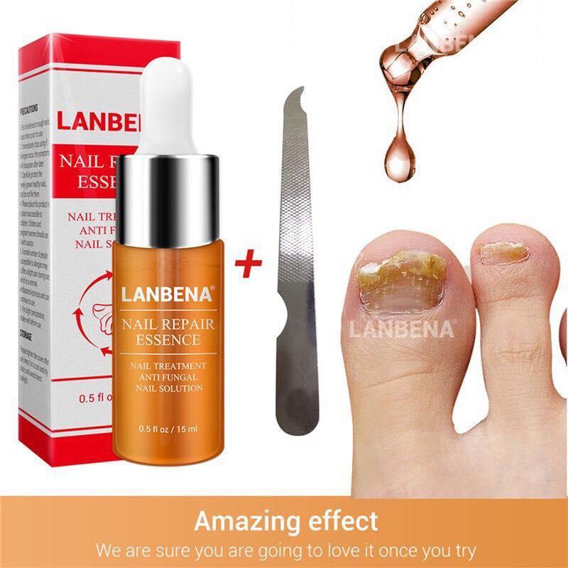 Lanbena Nails Repair Serum Essence Anti-Fungal Foot Treatment 15ml By Healthandbeautyph