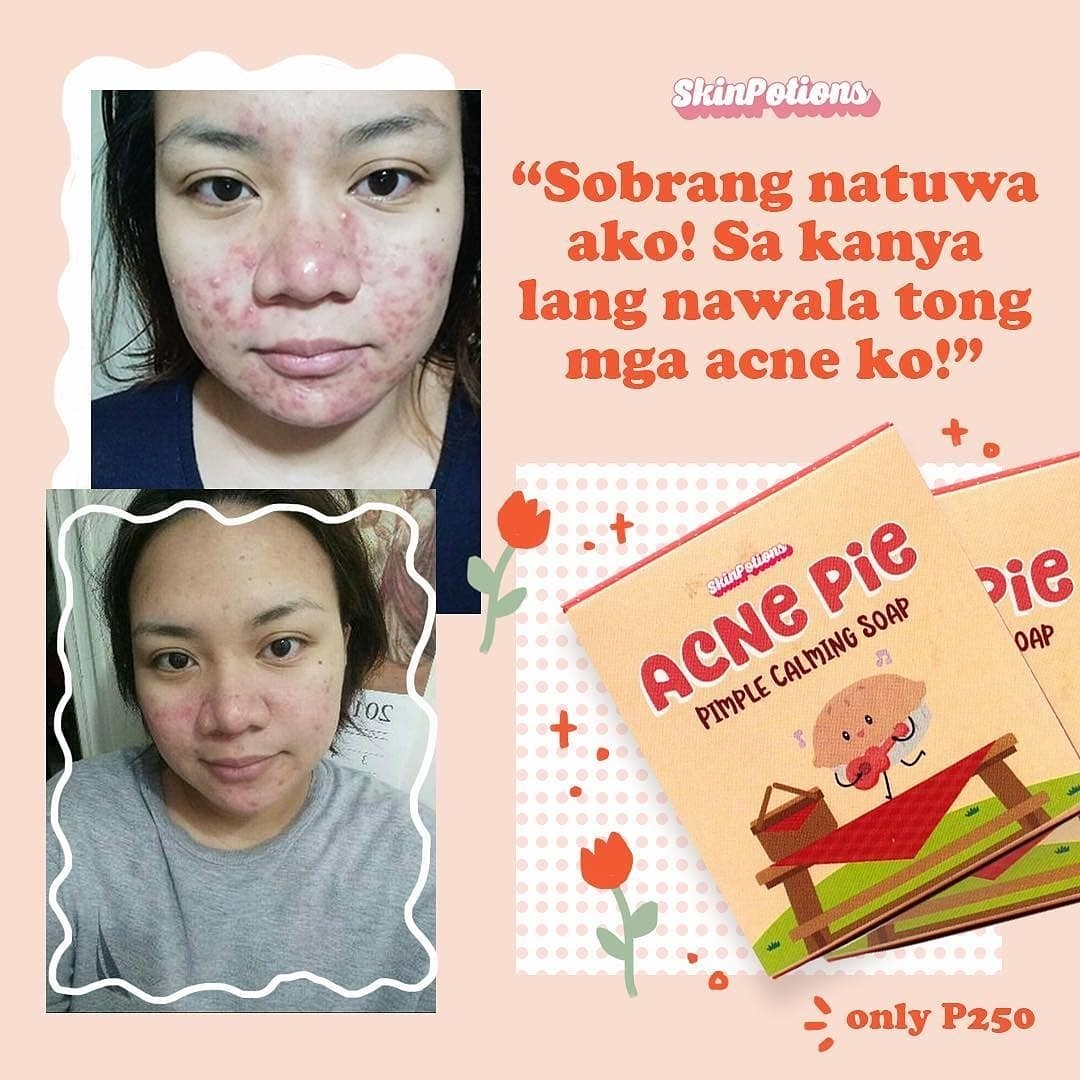 Skinpotions Acne Pie Soap Buy Sell Online Spots Blemishes With Cheap Price Lazada Ph