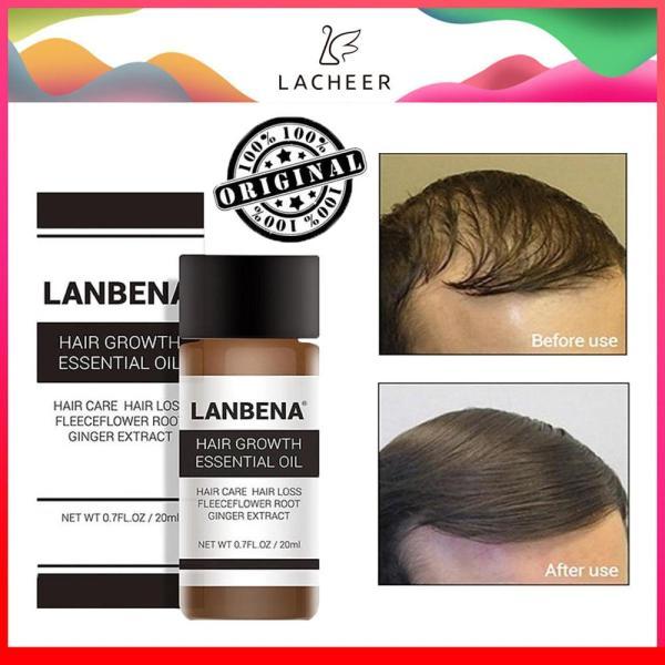 LANBENA Tinh chất trị rụng tóc, chống hói, kích mọc tóc nhanh giá rẻ