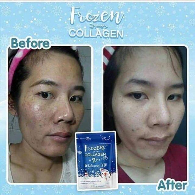 Original Frozen Collagen 2in1 Whitening x10 60capsules New Packaging  (Thailand)   Lazada PH
