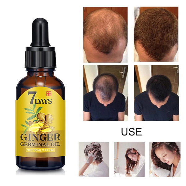 Fast Hair Growth Essence Oil Hair Loss Treatment Help for hair Growth Hair Care 30ml giá rẻ