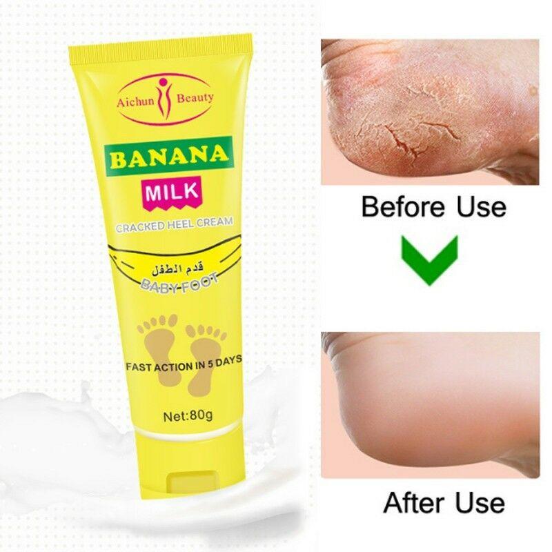 Authentic Banana Milk Cracked Heel Cream Baby Foot Fast Action In 5 Days! |  Lazada PH